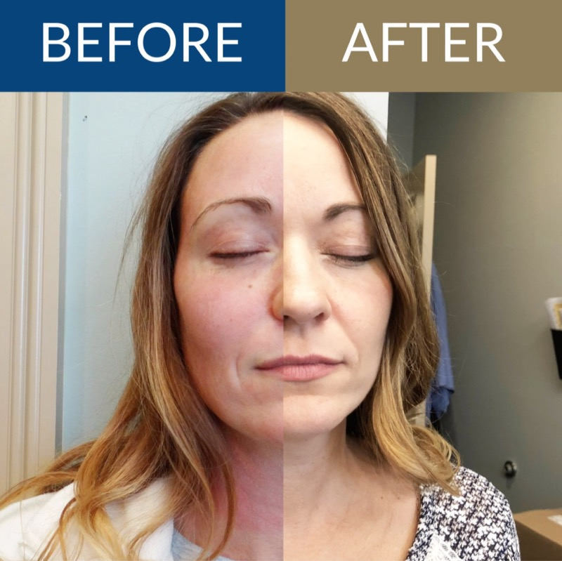 Platelet Rich Plasma Facial and Microdermabrasion